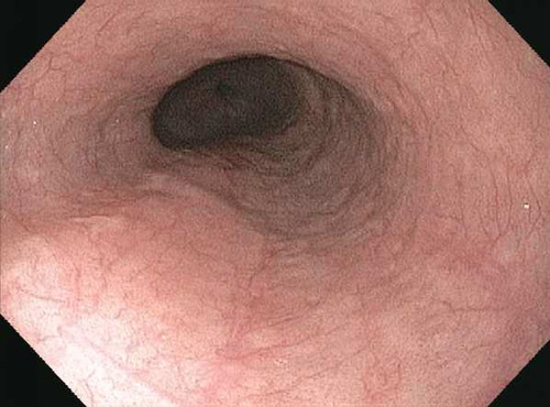Esophageal Adenocarcinoma Endoscopy Car Pictures - Car Canyon of Icd 9 code for spinal cancer